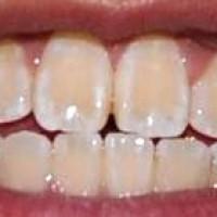 ۱۰ علت بدرنگی دندانها و راههای جلوگیری از آنها | روش هایی برای سفید ماندن دندان